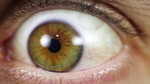 Verrücktes Auge