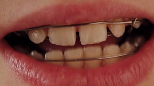 Plaque dentaire dans les dents