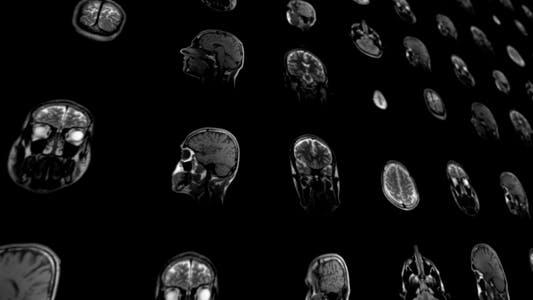 Thumbnail for Magnetic Resonance Imaging