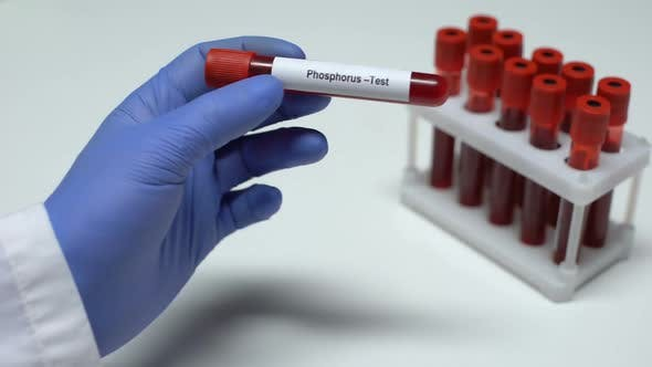 Thumbnail for Phosphorus Test, Doctor Showing Blood Sample in Tube, Lab Research, Health Check