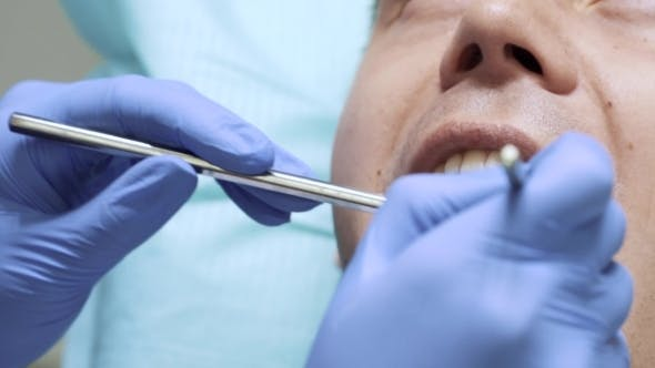 Thumbnail for Dentist Using Dental Mirror