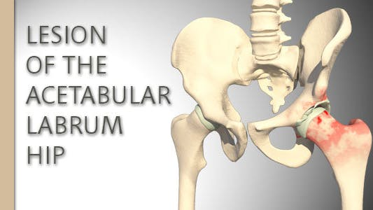 Thumbnail for Lesion Of The Acetabular Labrum Hip