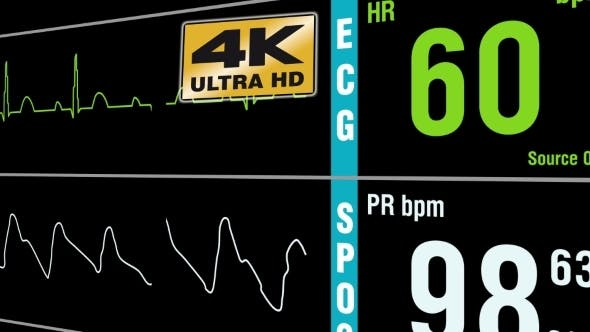 Patient Monitor Displays Medical Exam Vital Signs