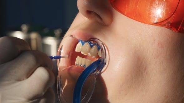 Thumbnail for Whitening Teeth In Dental Clinic