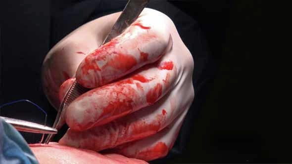 Thumbnail for Surgical Suture Or Stitches 8