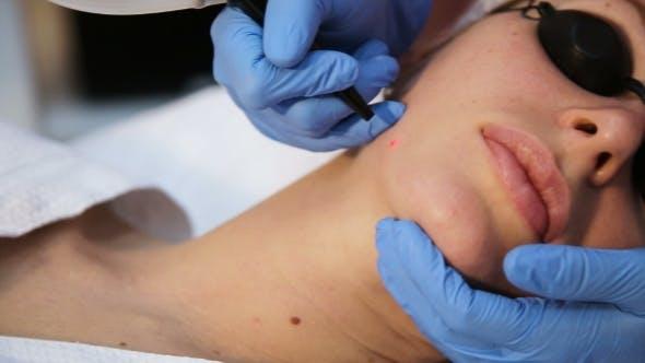 Thumbnail for Therapist Beautician Makes a Laser Rejuvenation