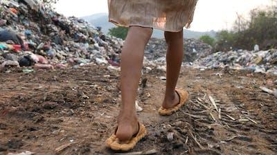 Poor Feet Kid Walking, Garbage At Background
