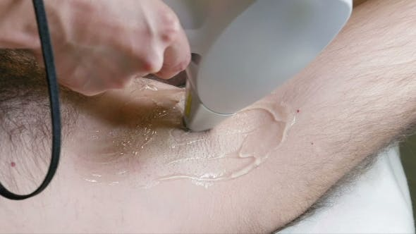 Thumbnail for Man Gets Laser Hair Removal Treatment Underarm