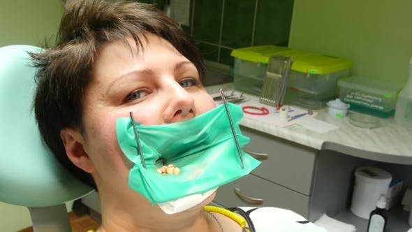 Thumbnail for Open Mouth During Oral Checkup