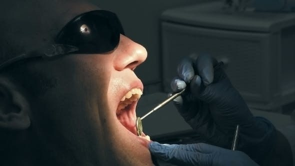 Thumbnail for Man Gets Dentist Medical Mouth Teeth Treatment