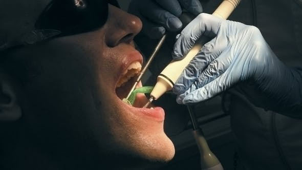 Thumbnail for Mid Age Man Gets Medical Teeth Removing Calculus