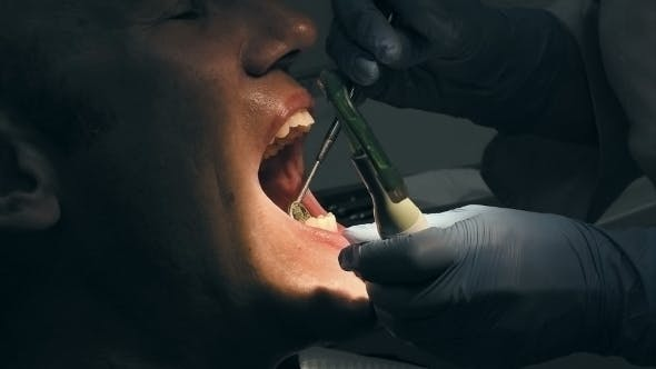 Thumbnail for Man Gets Dental Medical Examination And Treatment