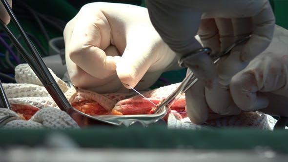 Thumbnail for Surgery