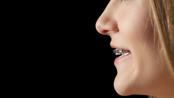 Thumbnail for Girl In Profile With Braces Laughs. Black