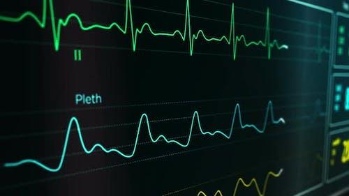 ECG Cardiac heart rate monitor in hospital loopable