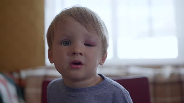 Portrait of Sorrowful Little Boy Cannot Open His Eyes From an Injury or a Bruise on His Face Half