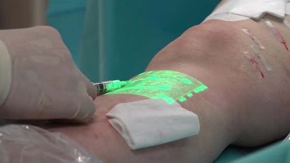 Varicose, Sclerotherapy and Vein Viewer