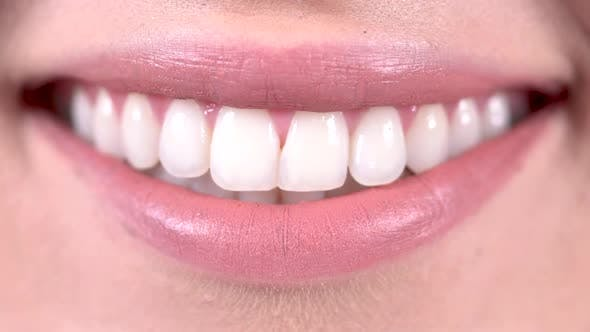 Thumbnail for Smile With Teeth