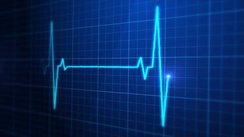 EKG-Puls