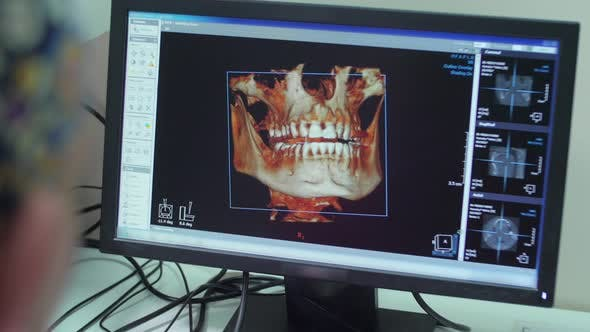 Thumbnail for 3D view of maxillary and mandible on a screen
