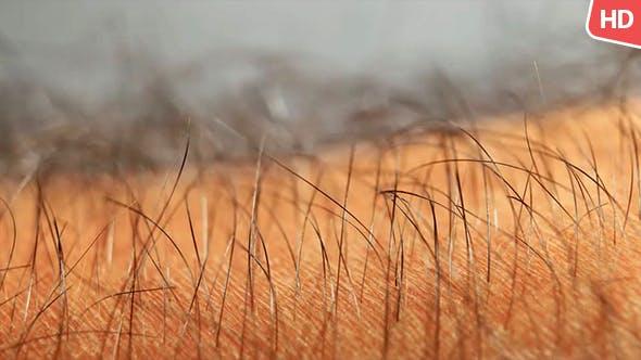 Thumbnail for Menschliche Haut mit Haaren 0634