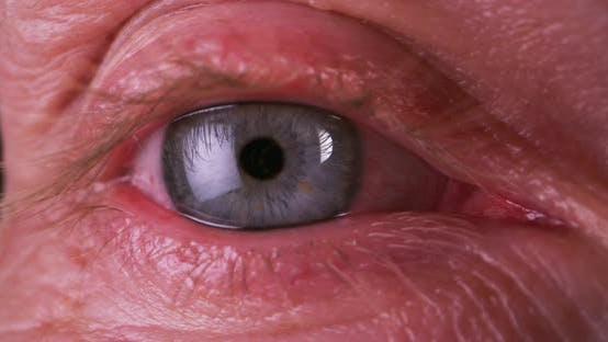 Thumbnail for Eye Staring Straight at Camera
