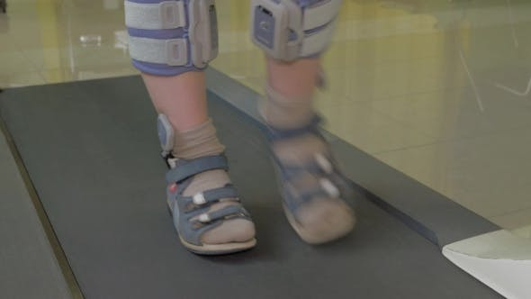 Thumbnail for View Of Small Boy Feet On Treadmill In The Special Orthopedic Bandage And Foot Wear