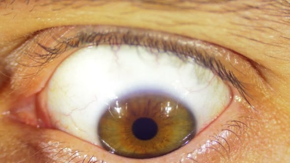 Thumbnail for Crazy Eye Rotation
