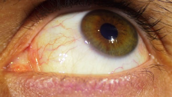Thumbnail for Eye Rotation Of The Eyeball