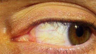 Eye Rotation Of The Eyeball