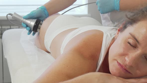 Thumbnail for Mature Woman Getting Rf-lifting Treatment on Her Body at Beauty Clinic