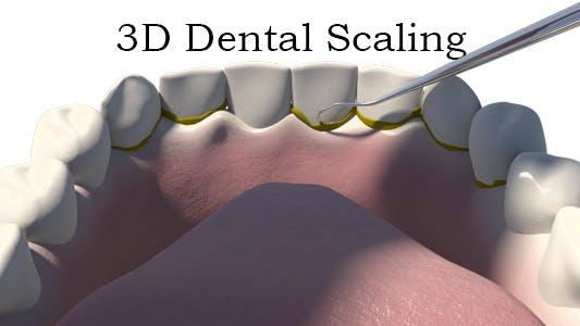 Thumbnail for 3D Dental Scaling
