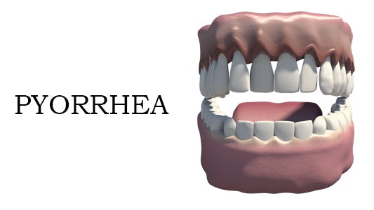 Thumbnail for Pyorrhea