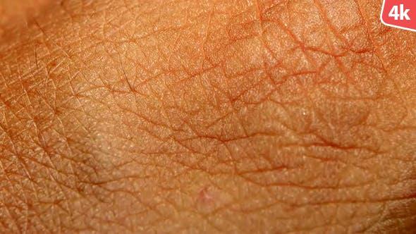 Thumbnail for Human Skin 701