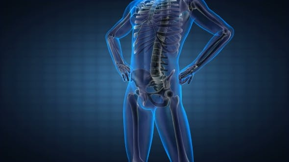Thumbnail for Human Bones Radiographic Scan