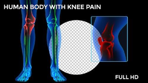 Menschlicher Körper - Knieschmerzen FullHD