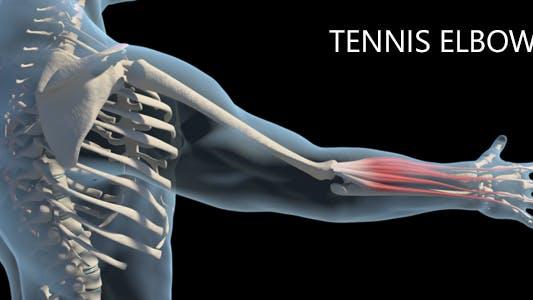Thumbnail for Tennis Elbow