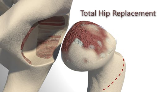Thumbnail for Total Hip Replacement