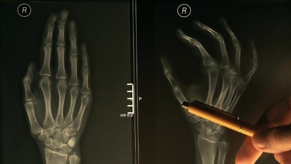 Thumbnail for Doctor Explains Xray Image of a Hand