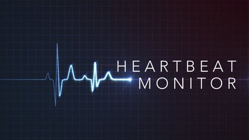 Heartbeat Monitor - EKG