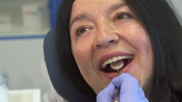 Thumbnail for Woman Opens Her Mouth for Dental Check Up
