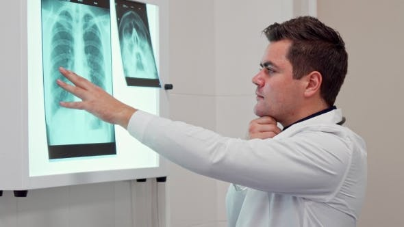 Thumbnail for Male Doctor Holds His Hand on the X-ray Image