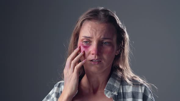 Thumbnail for Woman Victim of Domestic Violence Touches His Face with Bruises and Abrasions