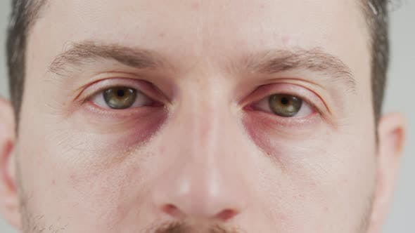 Thumbnail for Eyes of a concerned man