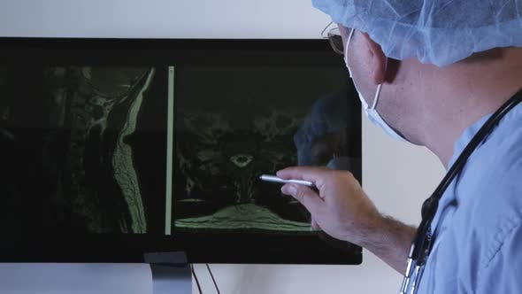 Thumbnail for Doctor Checking X-ray Photo Of A Patient 06
