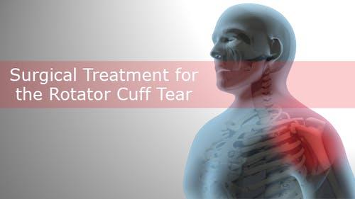 Chirurgische Behandlung für den Rotator Manschettenriss