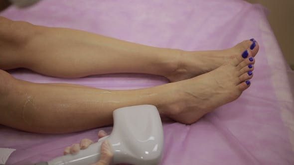 Thumbnail for Laser Hair Removal Procedure on Female Legs