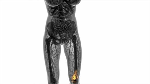 Thumbnail for Knee Bones Anatomy