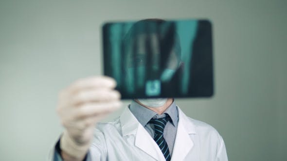 Thumbnail for Medical Technology, the Doctor Makes a Diagnosis, Examines an X-ray of the Patient
