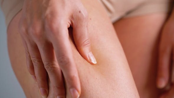 Thumbnail for Female Hip Stretch Marks and Cellulite on the Skin